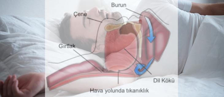 osas biyoistatistik analiz